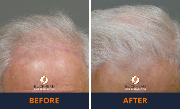 thinning hair in an older male hair transplant results Before and After NeoGraft 2,000 Grafts- Hair Restoration Gallery at Buckhead Hair Restoration with Dr. Monte Slater