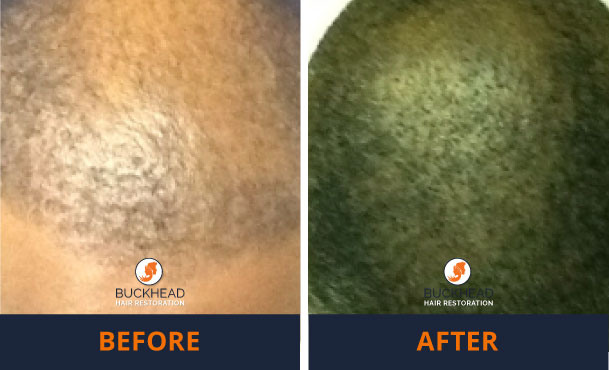 Thinning hair in african american male Before-and-After-2,200-Grafts-and-PRP-Scalp-Treatment