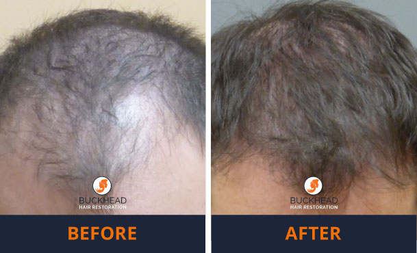 hair transplant results Before and After 2,500 Neograft Graft PRP Combination Treatment