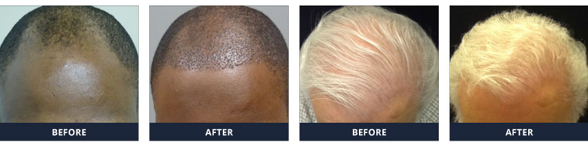 Neograft Before and After Shots