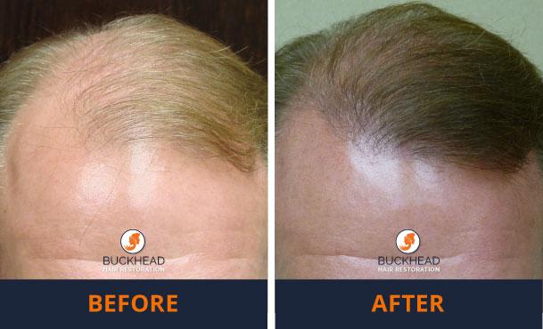 Neograft Treatment Buckhead Hair Restoration