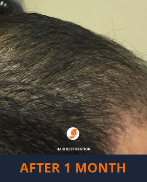 Hair Restoration Results - Side view 1 month after NeoGraft