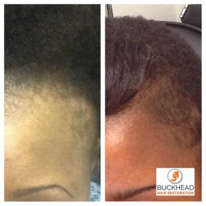 11 month Post FUE Follicular Unit Extraction Hair Restoration 1859 Grafts and PRP Therapy