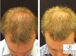 How To Combat Hair Loss – Top Treatments include FUE