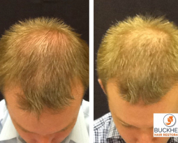 Follicular Unit Extraction – Hair Restoration