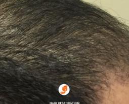 Natural Hair Restoration Results