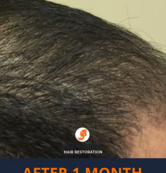 Natural Hair Restoration Results
