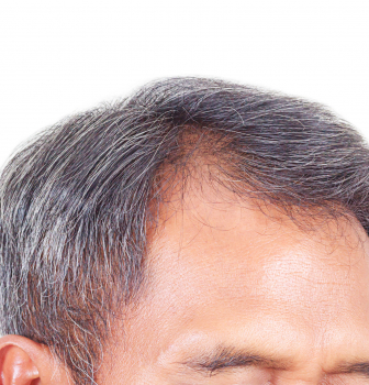 Hair Loss Solutions 2017