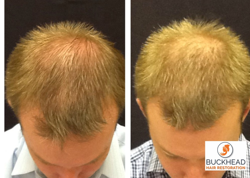 FUE Hair Restoration NeoGraft Faqs Hair Loss andHair Restoration
