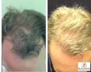 Follicular Unit Extraction Method- Male Hair Loss FUE Gallery - before and after 9-Month Post FUE Hair Transplant