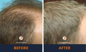 Hair Restoration Gallery Before and After Look Neograft patient