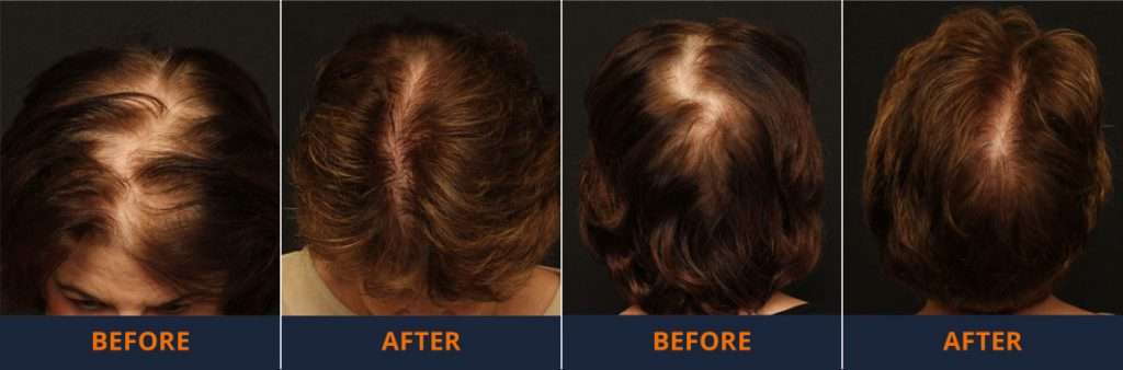 Before & After Neograft Treatment -Female Hair Loss Treatments