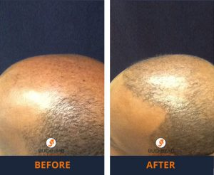 NeoGraft Hair Restoration Gallery