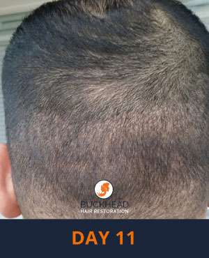 Hair Restoration Questions and answers Day 11 of Neograft Treatment