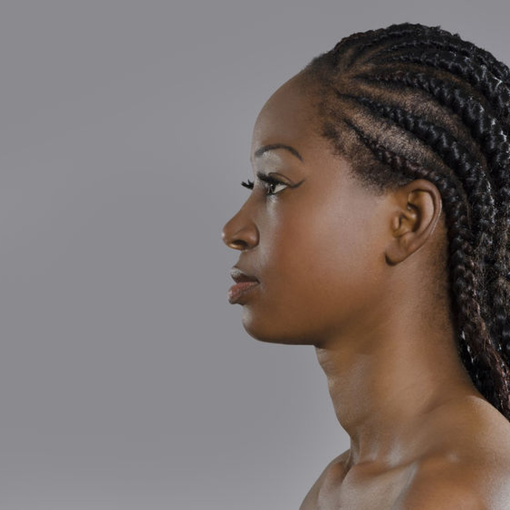 Reasons for Hair loss in women include Traction Alopecia caused by tight hair styles. PRP works for hair loss in African American Women. Are you facing Traction Alopecia then contact Dr. Slater today and discover hair loss treatments. Find out the reasons for hair loss in in women