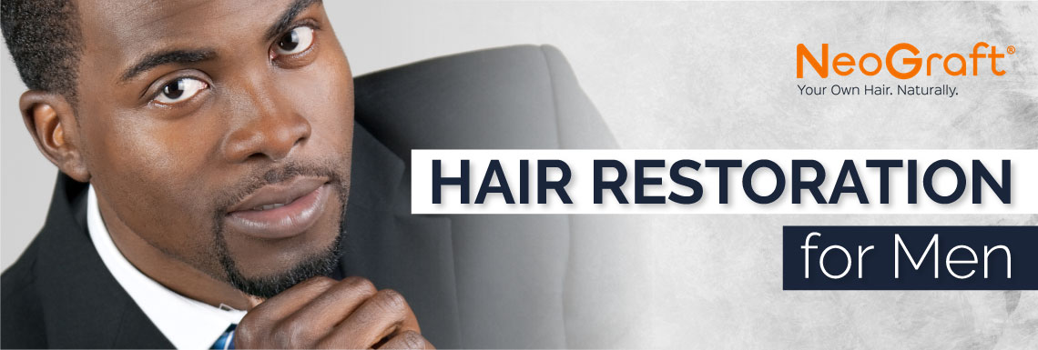 Hair Restoration in Atlanta-losing hair Neograft Hair Loss Solutions