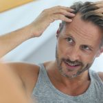 advanced hair transplant questions stress linked to hair loss