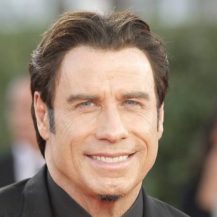 Celebrity Hair Transplants Unlock The Secret No Linear