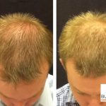 Follicular Unit Extraction Method of Hair Restoration in Buckhead by Dr. Slater and team
