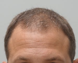Permanent Hair Restoration