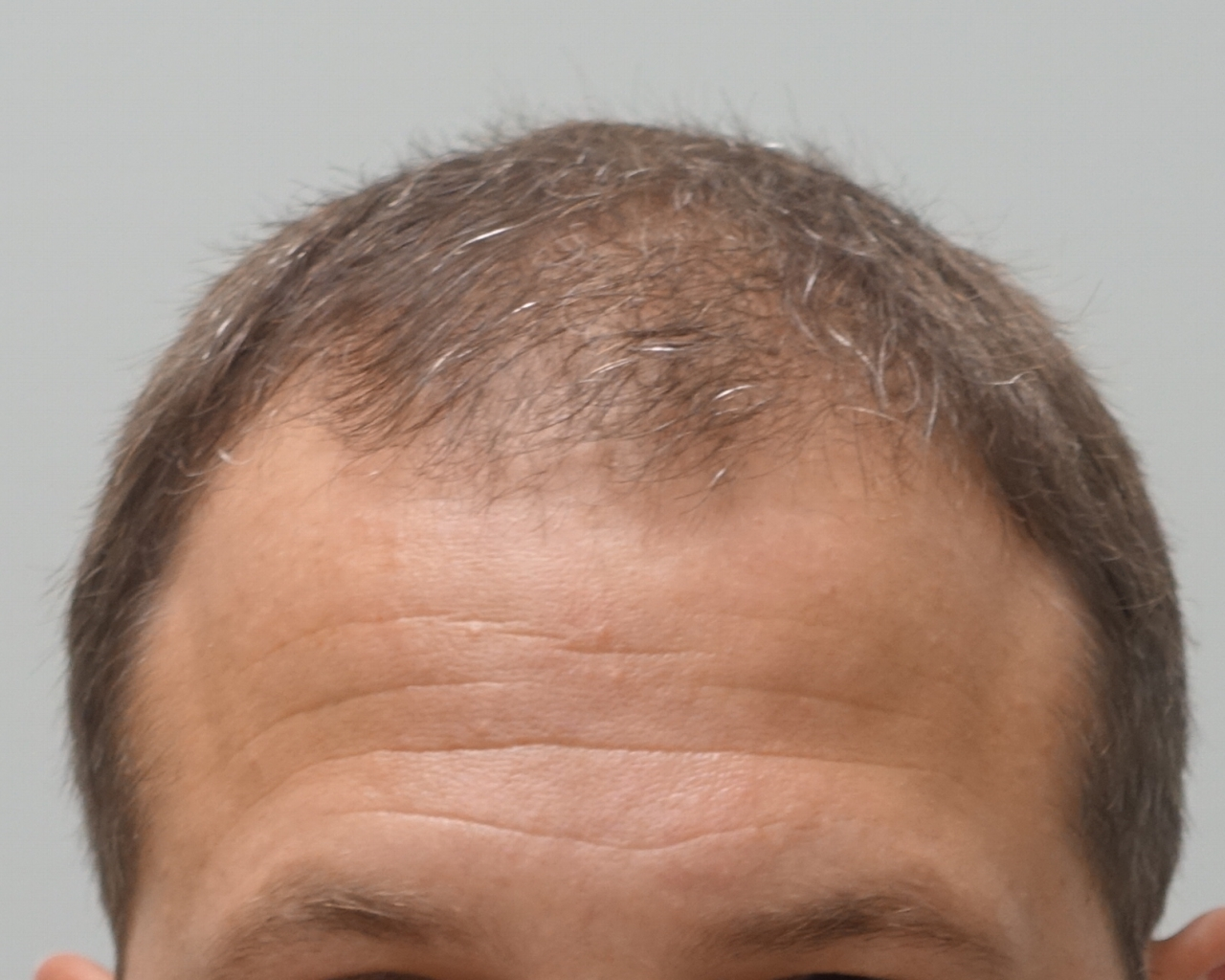 Permanent Hair Restoration
