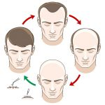 Nonsurgical Hair Restoration