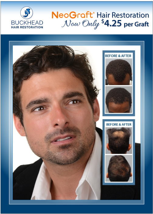 Buckhead Hair Restoration is an Atlanta based Hair Restoration Clinic - Medical Director Dr. Monte Slater - Buckhead Hair Restoration is also known as ATL Hair Clinic and is Atlanta's #1 Choice for Hair Restoration