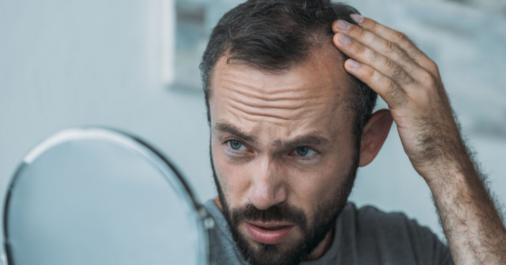 Seven Most Common Hair Loss Questions and Answers- HairLoss Solutions at Buckhead Hair Restoration in Atlanta and Warner Robins, Georgia