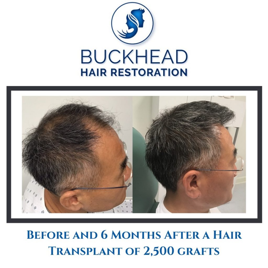 Before and after Neograft Hair Restoration with Dr. Slater and team in Atlanta. Patient had 2500 grafts (6months post-op)