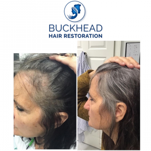 Buckhead Hair Restoration Before and After One PRP Treatment