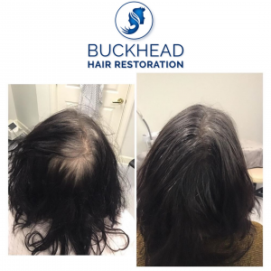 Buckhead Hair Restoration Before and After One PRP Treatment (1)