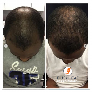 Before and after 7-months of receiving one PRP Treatment By Dr. Monte Slater