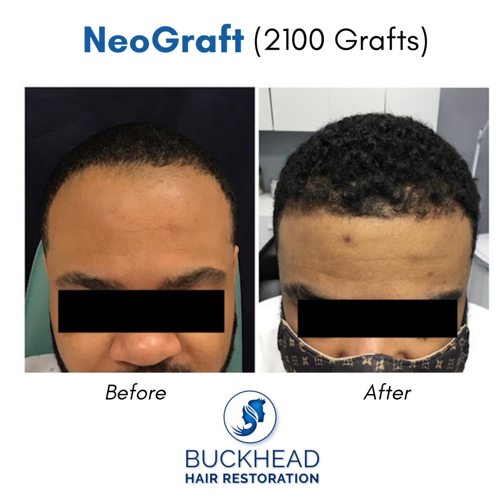 Before and After 2100 NeoGraft Transplants