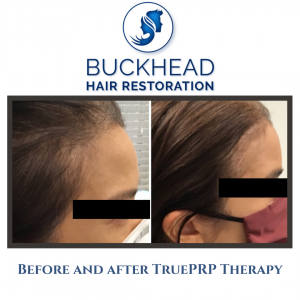 Before & After PRP Hair Restoration with Buckhead Hair Restoration