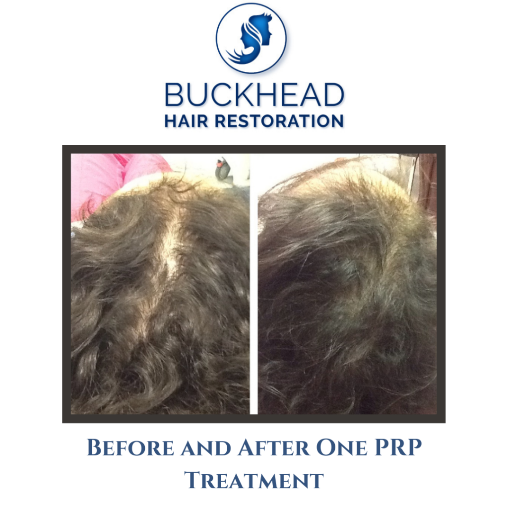 Before & After PRP Hair Restoration with Buckhead Hair Restoration (4)