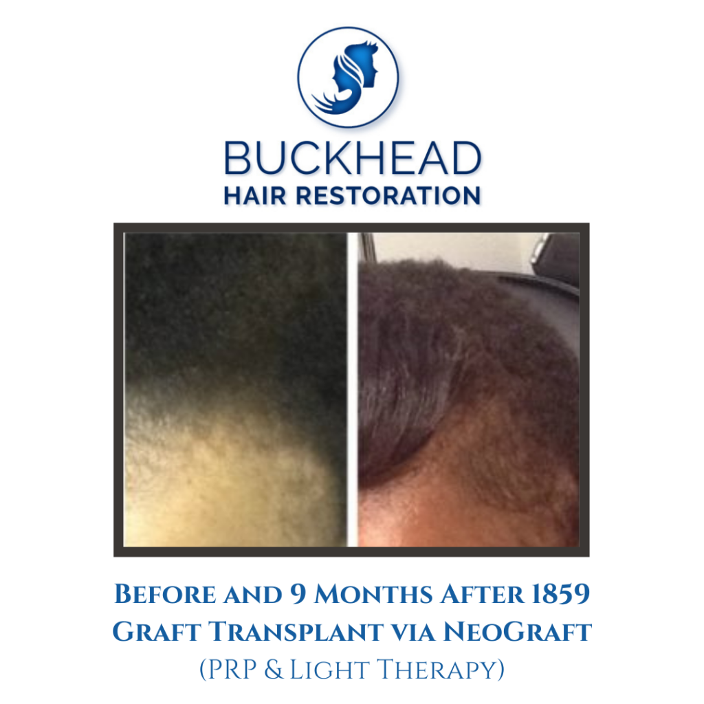 Front View Before and after 9-Months NeoGraft – 1859 Grafts (PRP Therapy & Light Therapy)