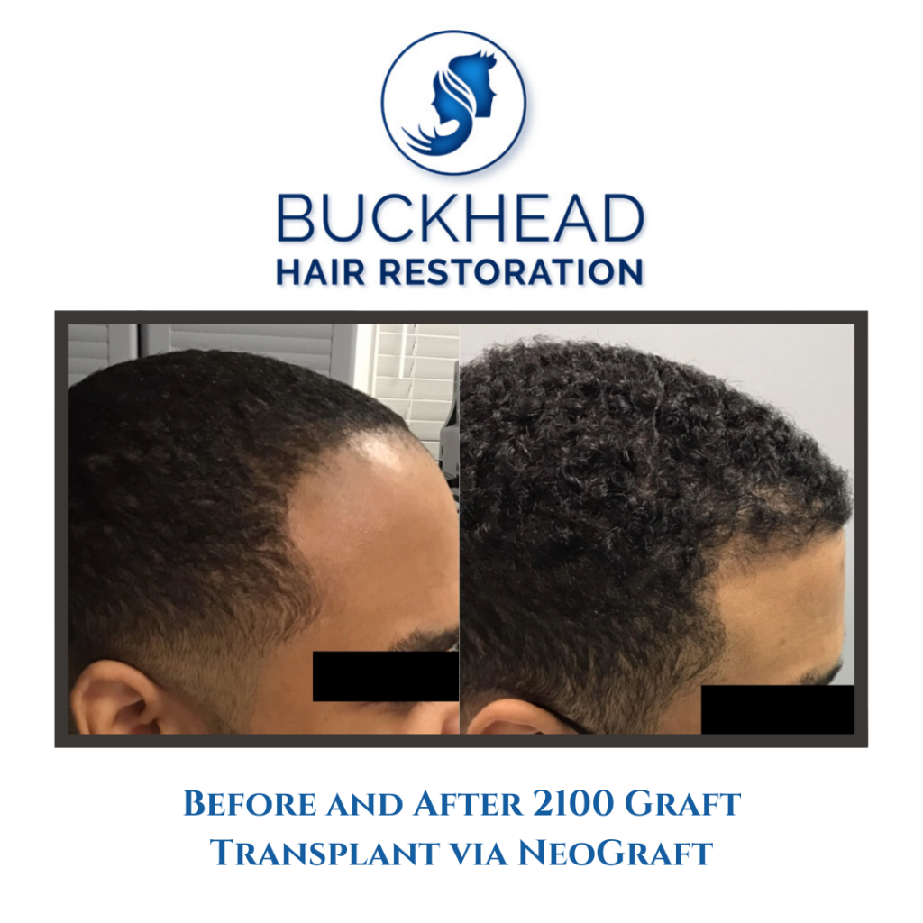 Before & After Hair Restoration with Buckhead Hair Restoration