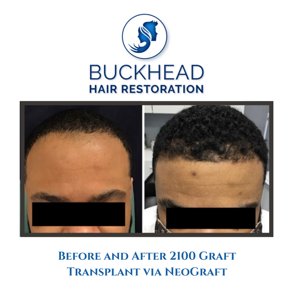 _Before & After Hair Restoration with Buckhead Hair Restoration (1)