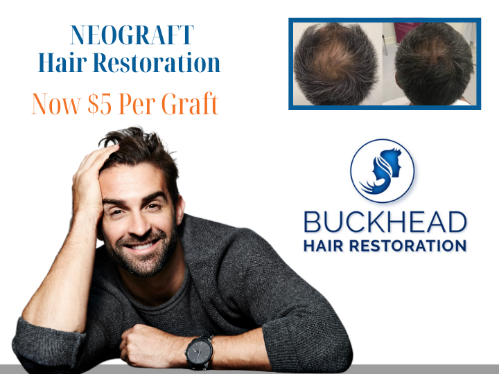 Neograft now only $5 per graft