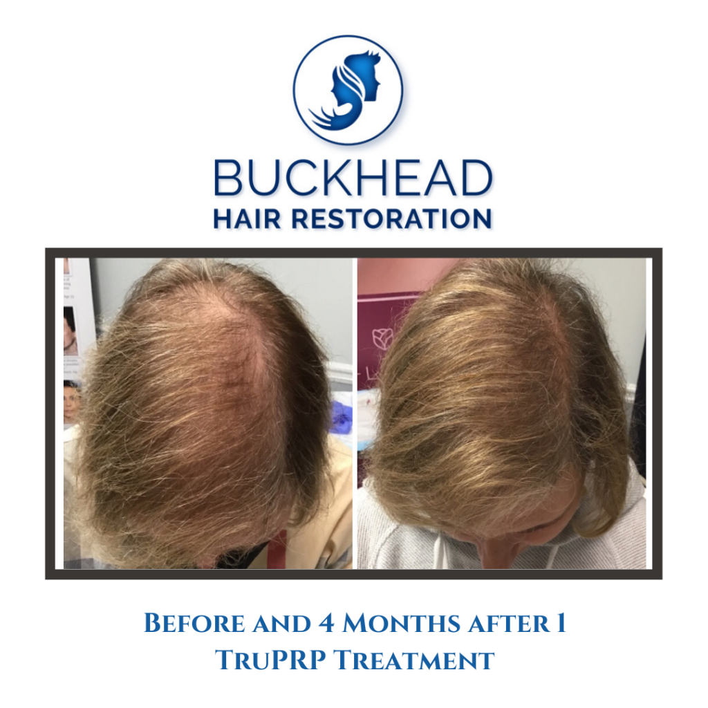 Before and after PRP Hair Restoration