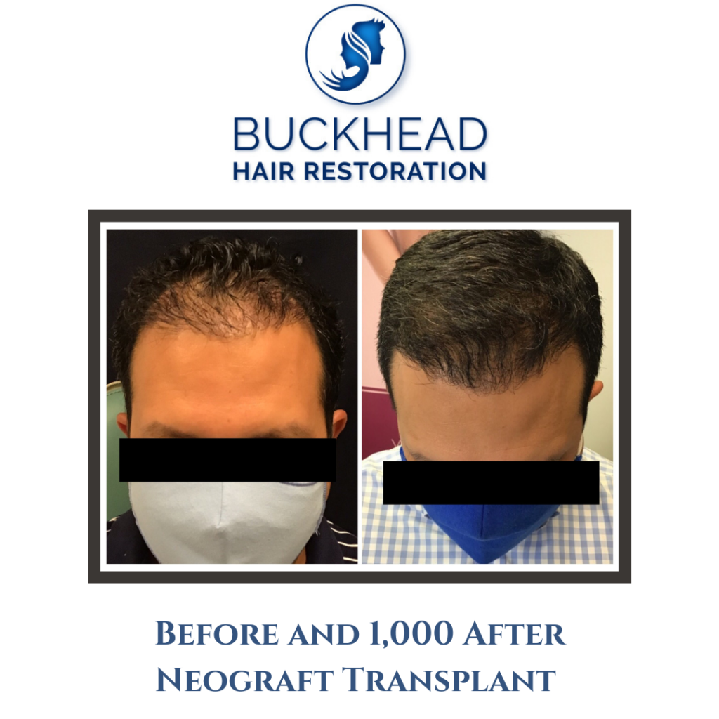 Before and 1,000 After Neograft Transplant