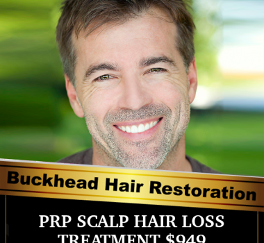 Hair Loss Solutions At Buckhead Hair Restoration