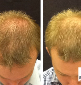 Follicular Unit Extraction – Hair Restoration