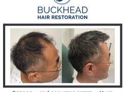Natural Looking Hair Restoration at Buckhead's #1 Hair Clinic