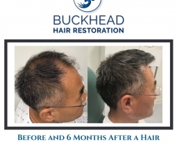 Natural Looking Hair Restoration at Buckhead's #1 Hair Clinic