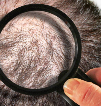 Seven Most Common Hair Loss Questions and Answers