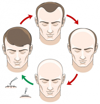 Is Permanent Hair Restoration Right For Me?